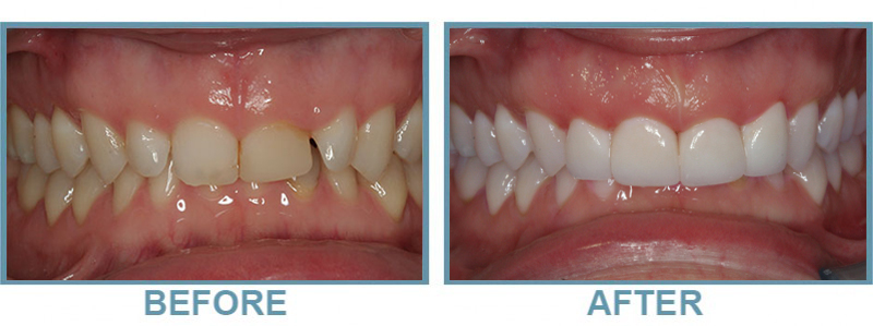 ohana dental before and after