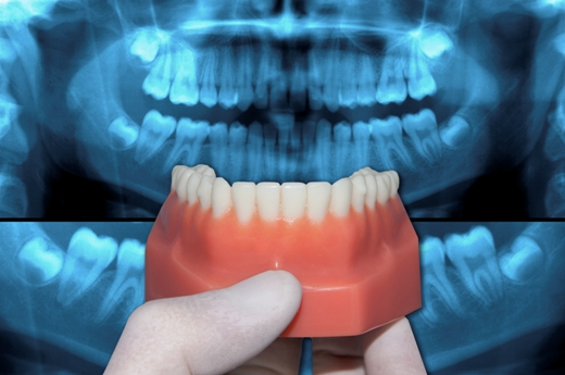 """Understanding Dental """"Lingo"""""""
