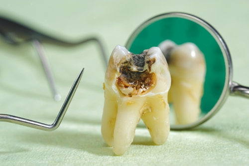Top Dental Health Problems You Might Have