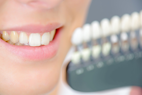 How Aging Affects Dental Health