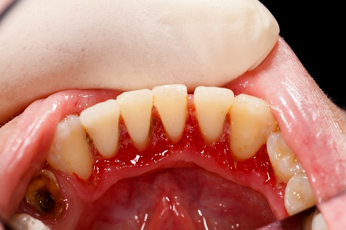 Preventing Dental Problems during the Holidays